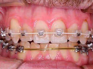 Зубы во время лечения на брекетах