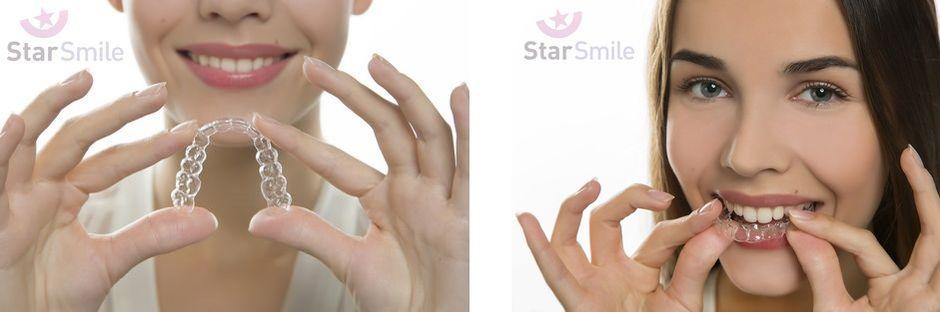 Ортодонтические элайнеры StarSmile