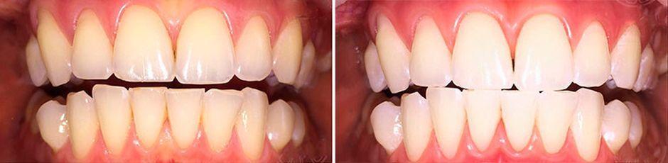 Капы для отбеливания зубов: до и после