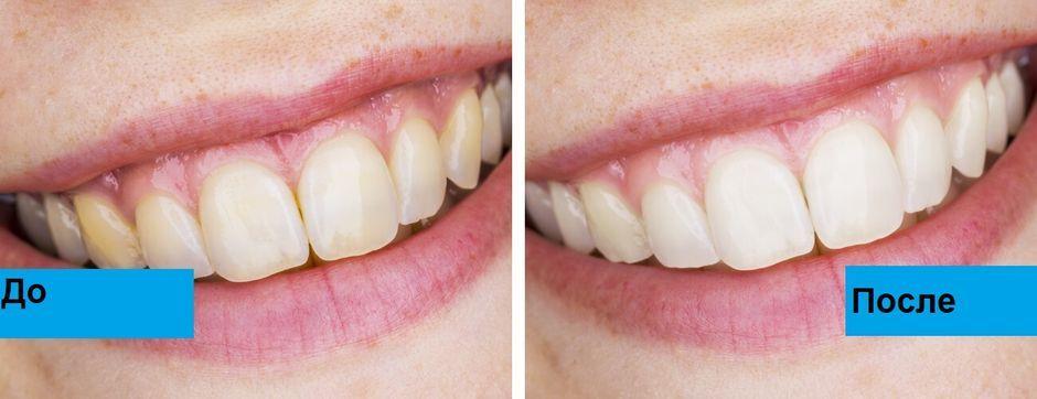 До и после ношения кап для отбеливания зубов