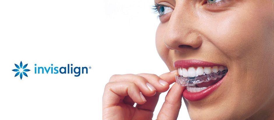 Капы для выравнивания зубов Invisalign