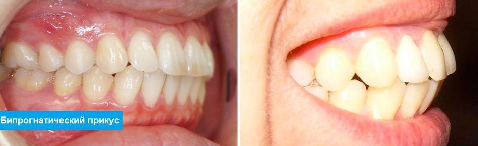 Смыкание зубов при бипрогнатическом прикусе