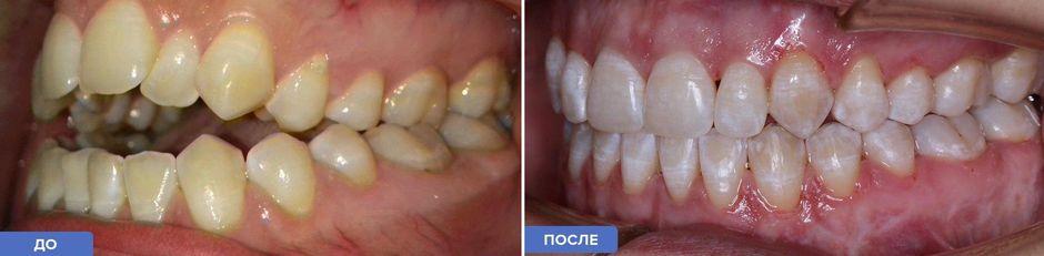 Брекеты Damon: фото до и после