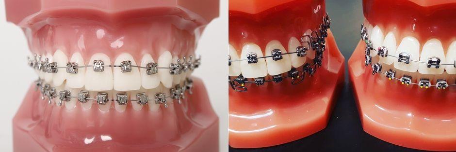 Установка брекетов Н4 на обе челюсти
