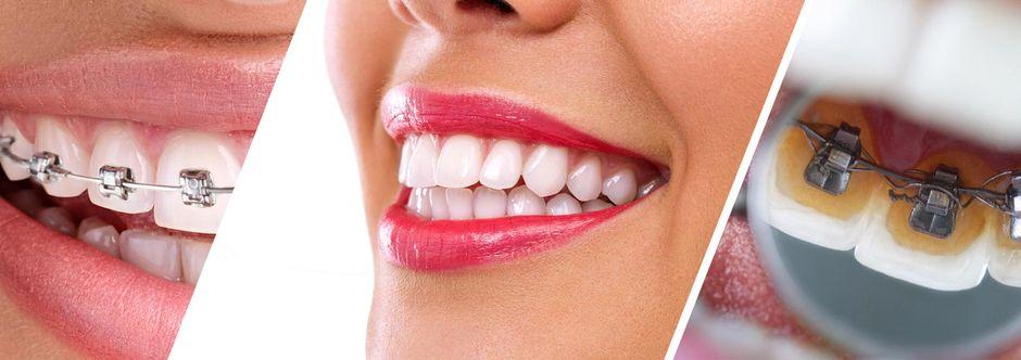 Установка брекетов может производиться на одну челюсть как на передней, так и на внутренней стороне зубов