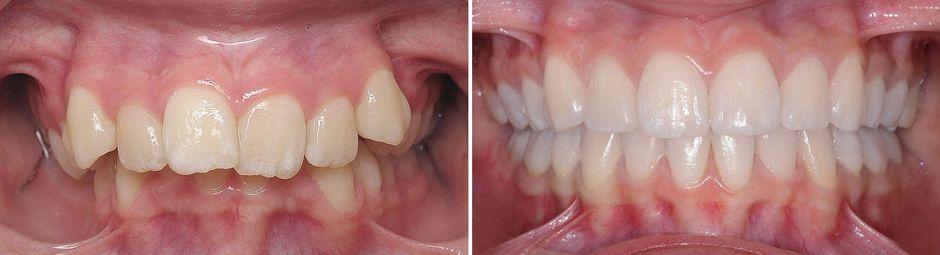До и после лечения глубокого прикуса