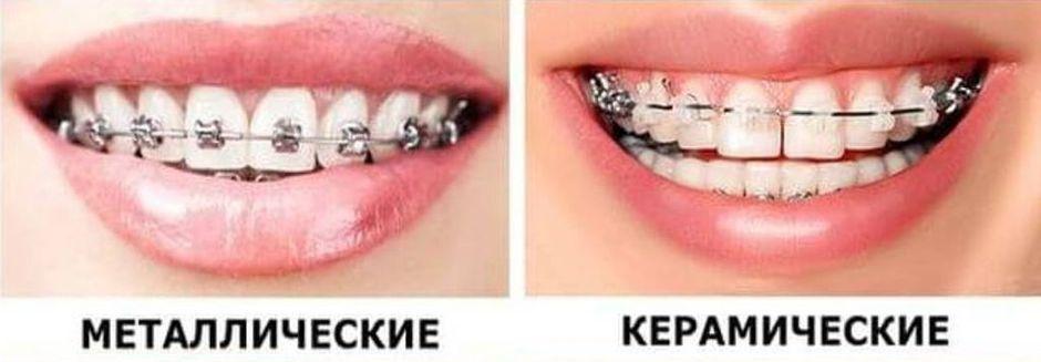Металлические и керамические брекеты
