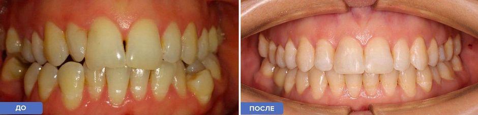 Лигатурные брекеты: до и после