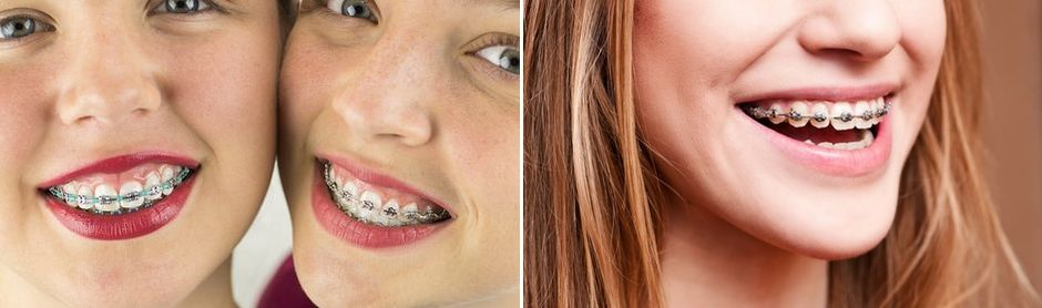 Как выглядят металические брекеты на зубах