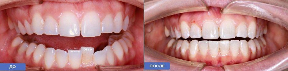 Металлические брекеты до и после
