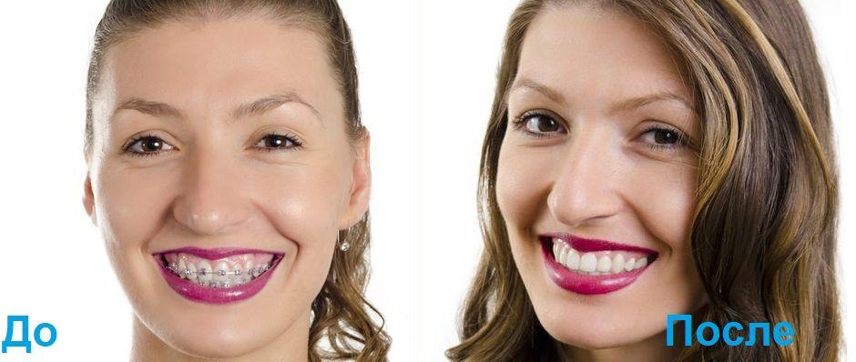 До и после методики Face Evolution