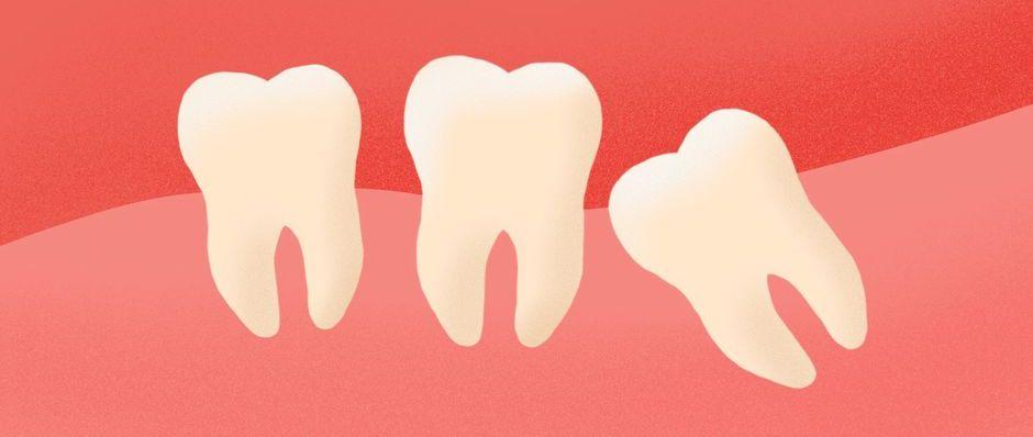 Потеря зуба как последствия мезиального прикуса