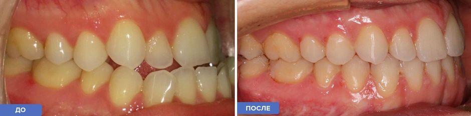 Ортодонтическое лечение: до и после