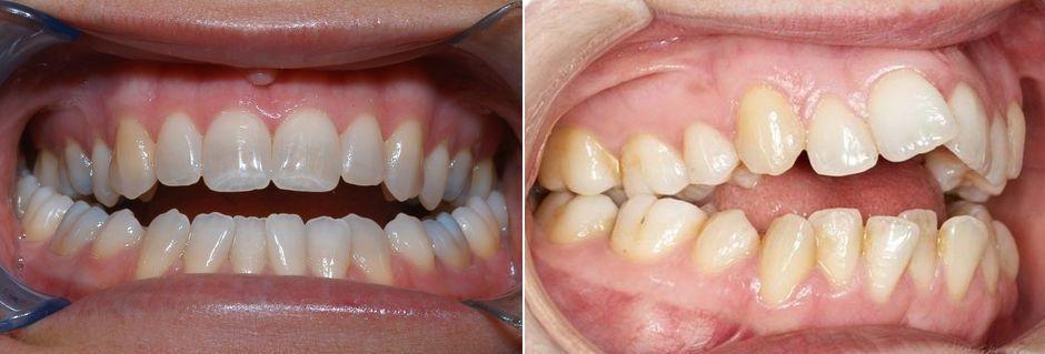 Соотношение зубов при открытом прикусе