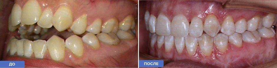 Открытый прикус: до и после лечения