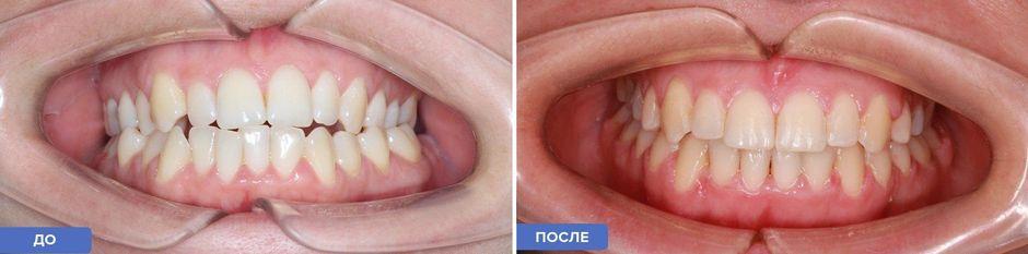 Лечение перекрестного прикуса: до и после