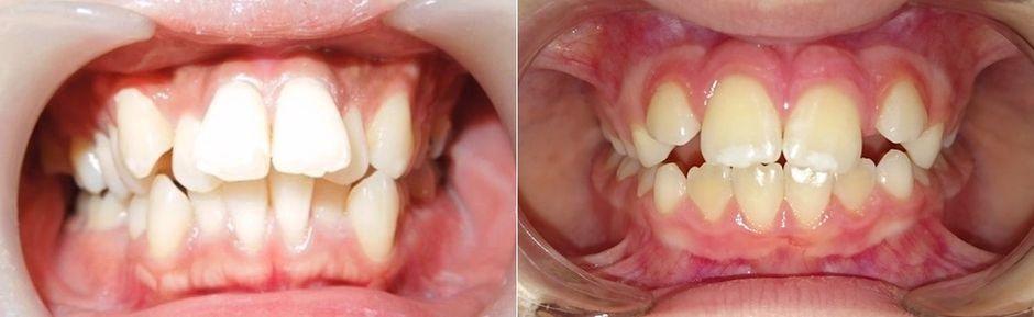 Пластиковые брекеты на зубах
