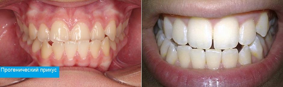 Соотношение зубов при прогеническом прикусе