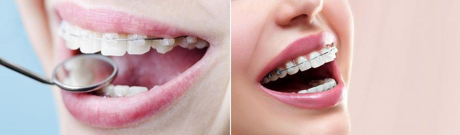 Брекет-системы в лечении скученности зубов