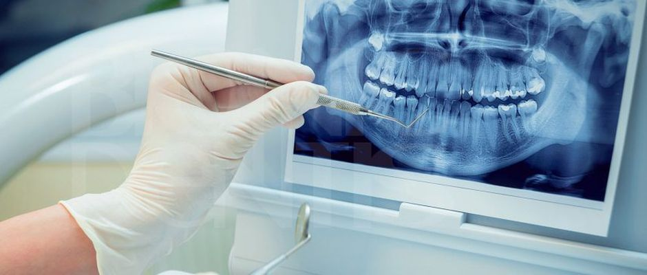 Лечение сужения челюсти у взрослых