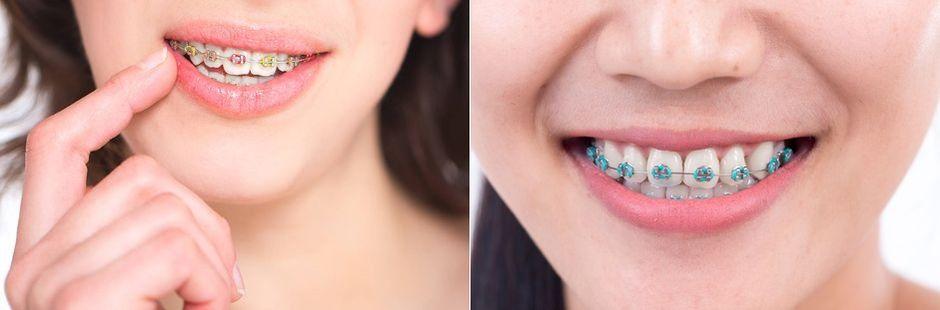 Радужные брекеты на зубах