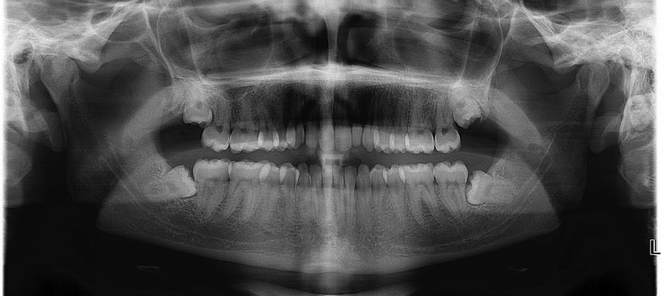 Сниимок челюстей с ретинированными зубами