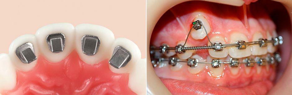 Варианты вытягивания зуба