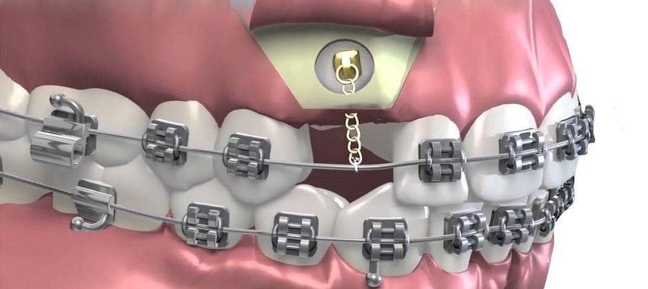 Система для вытягивания зуба