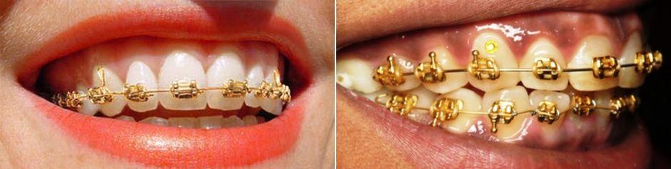 Золотые брекеты на зубах