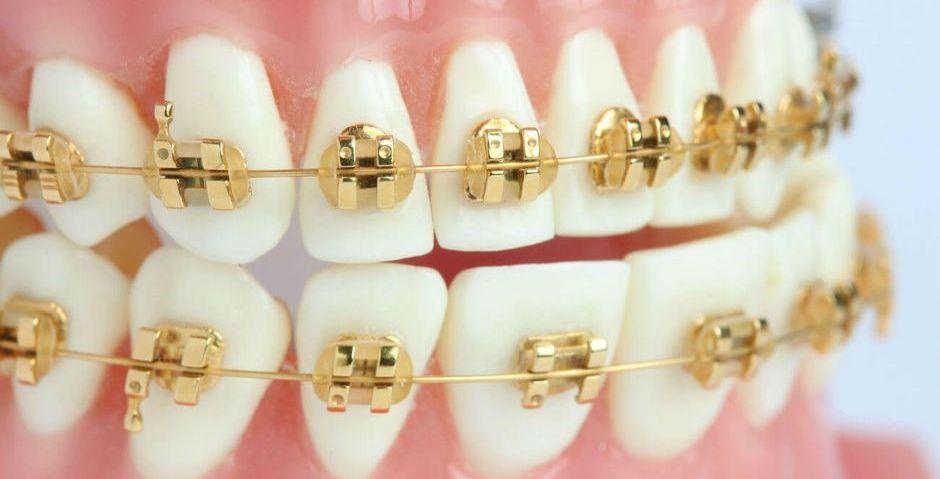Золотые брекеты