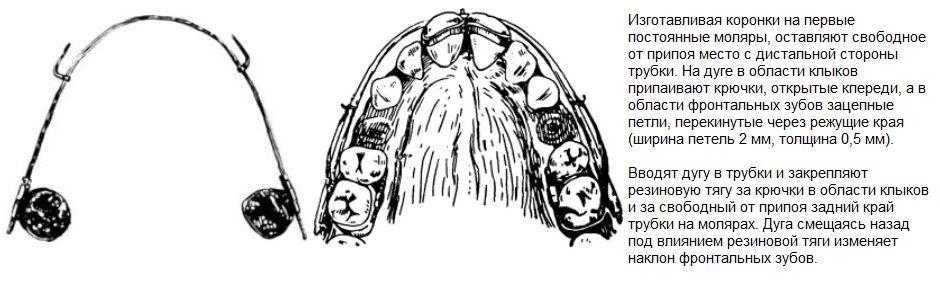 Скользящая дуга (аппарат) Энгля