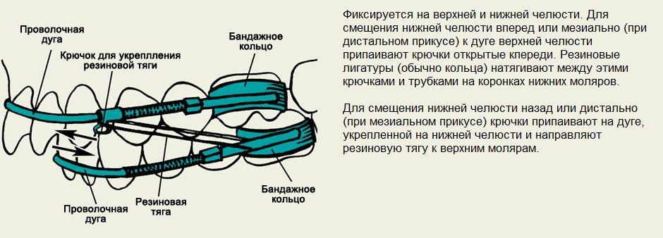 Функциональный аппарат Энгля межчелюстного действия
