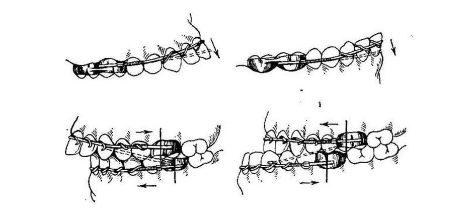 Коррекция положения нижней и верхней челюсти аппаратом Энгля