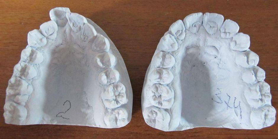 Гипсовый слепок челюстей