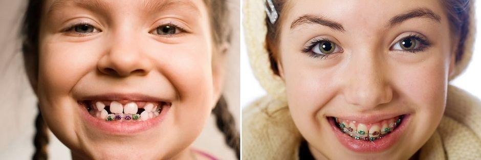 Брекеты для коррекции дистального прикуса у детей