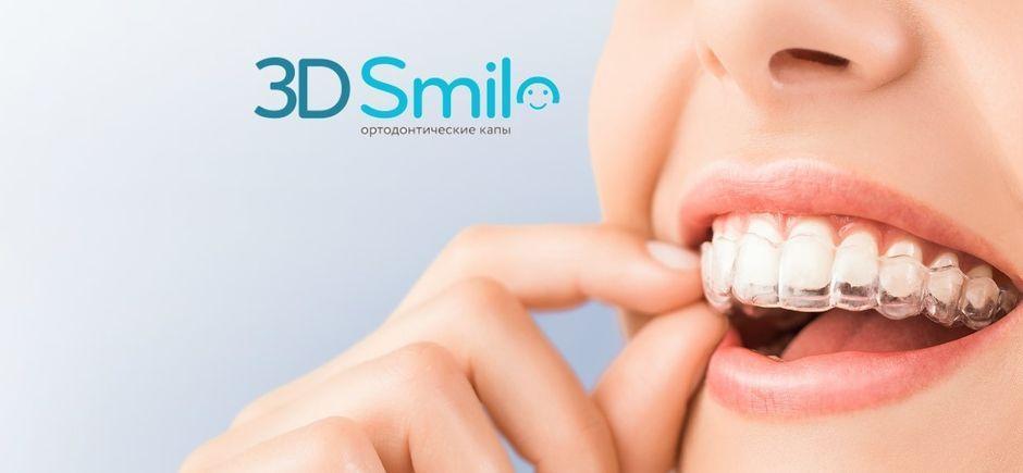 Элайнеры 3D Smile
