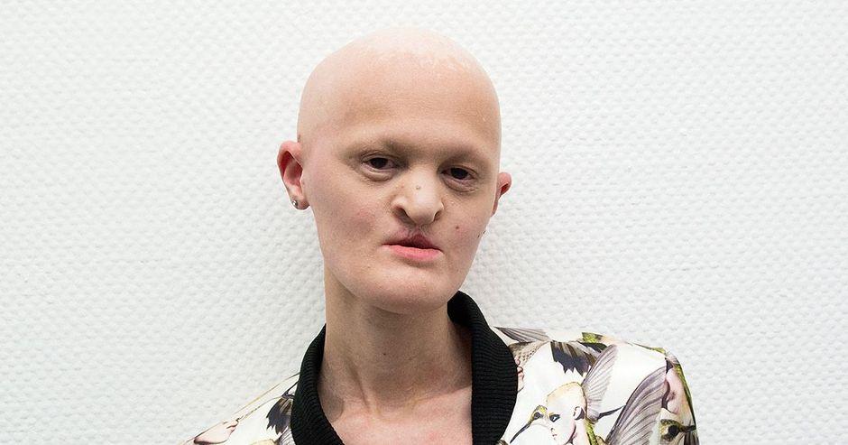 Мелани Гайдос — американская модель с заболеванием эктодермальная дисплазия