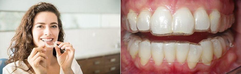 Ортодонтические капы на зубах
