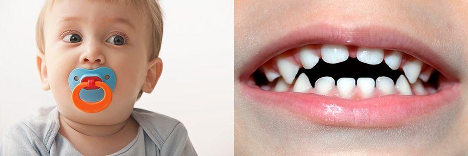 Влияние соски на развитие зубов