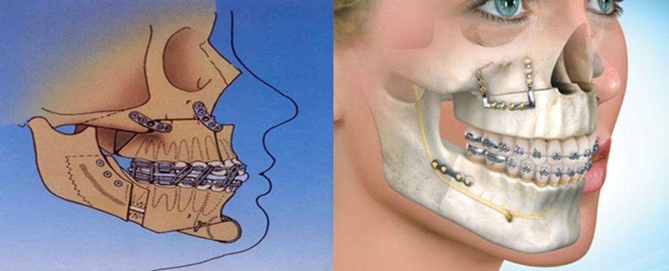 Проведение двучелюстной остеотомии