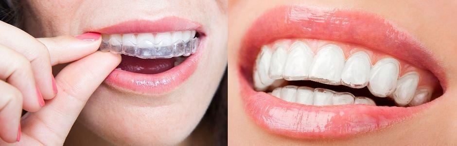 Съемные ретейнеры на зубах