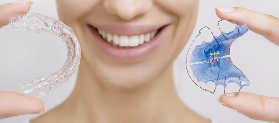 Съемные брекеты для зубов