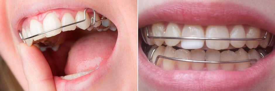 Съемные пластинки для зубов