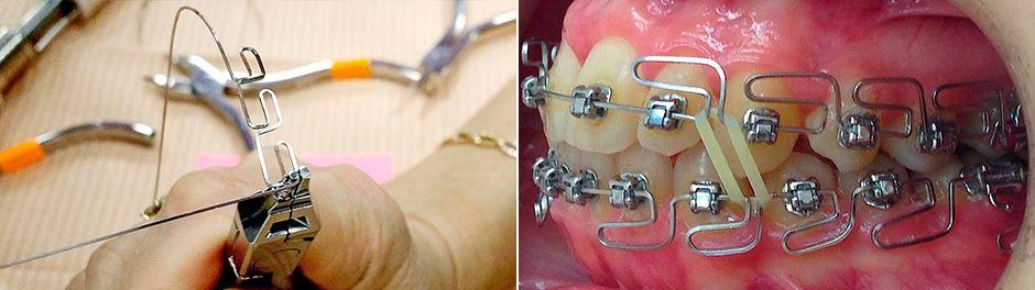 Процедура установки ортодонтической системы