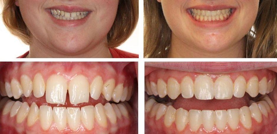 До и после лечения зубов трейнерами