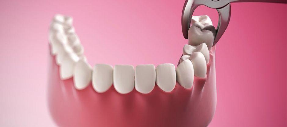Удаление зубов перед установкой брекетов