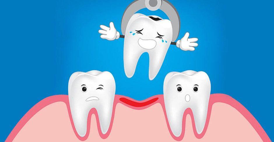 Удаление зубов перед брекетами