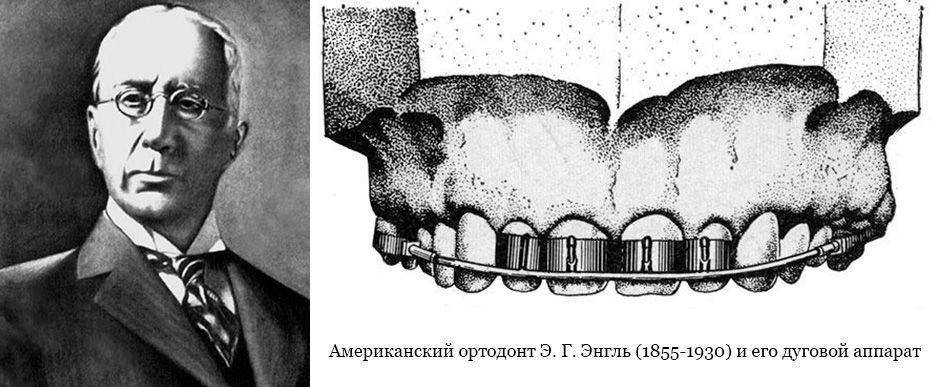 Ортодонт Э. Г. Энгль