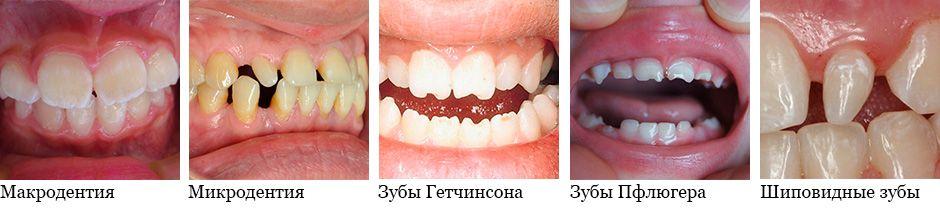 Аномалии формы и размеров зубов