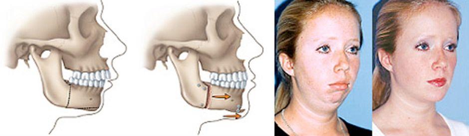 Результат исправления зубочелюстной аномалии